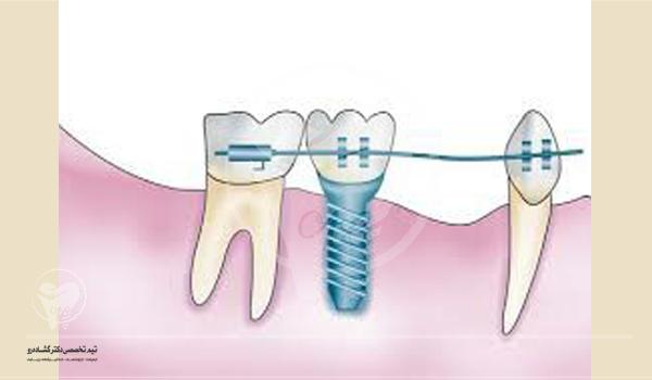آیا با وجود ایمپلنت دندان میتوان درمان ارتودنسی انجام داد؟