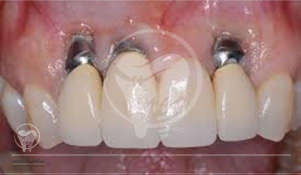 چگونه باید از تخصص یک دندانپزشک در این باره آگاه شد؟
