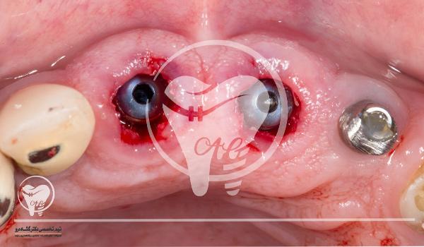مرحله چهارم ایمپلنت دندان