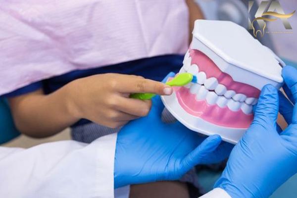 لمینیت های سرامیکی دندان