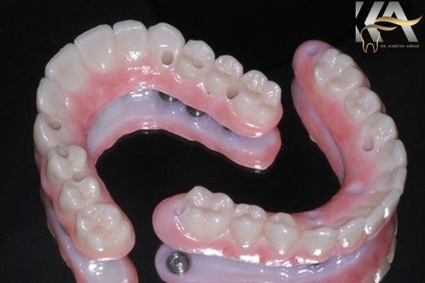 پروتز ثابت و متحرک دندان