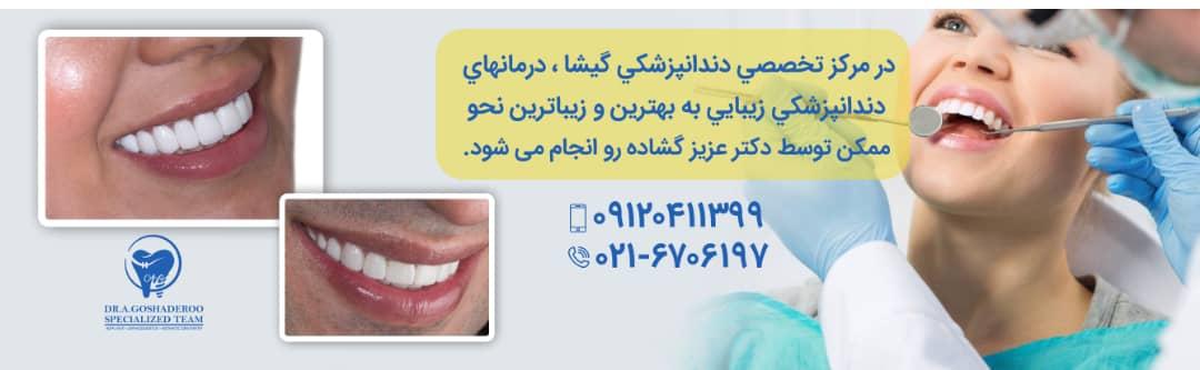 چگونه بهترین دندانپزشک زیبایی در تهران انتخاب کنیم