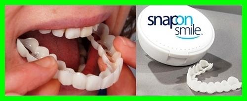 لمینت دندان چیست چیه چه کاربردی داره از کجا بخریم؟