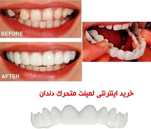 لمینت محترک دندان چیست