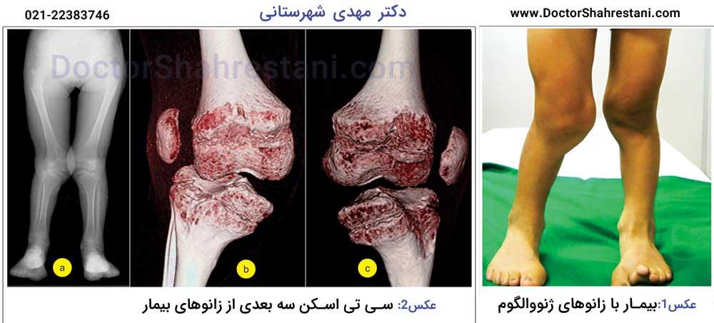 جراحی زانوی ضربدری یا ایکسی